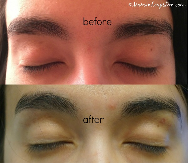 My Rapidlash Rapidbrow Results
